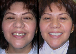 Before And After Tooth Colored Filling Patient