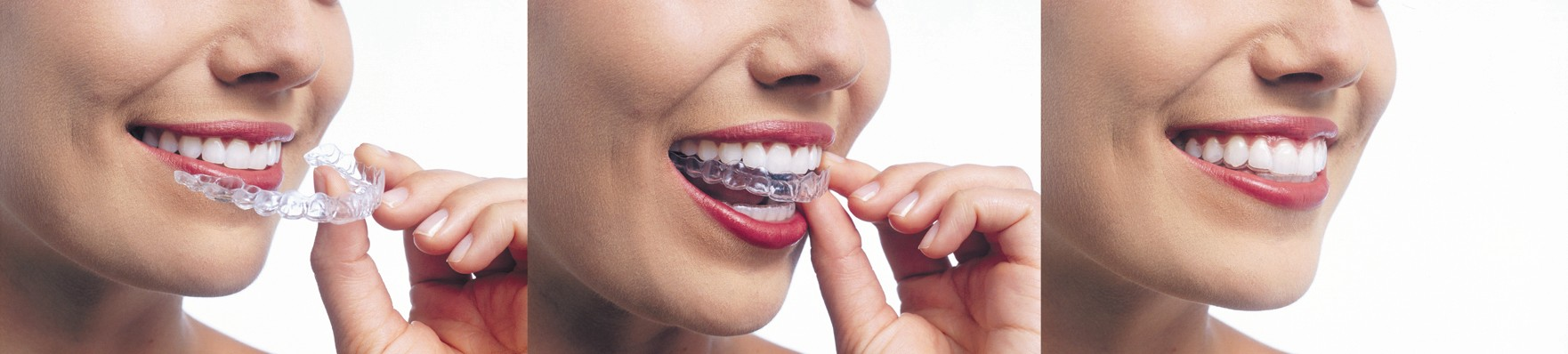 Invisalign Clear Braces In White Plains
