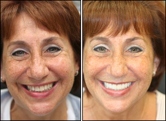 Before And After Dental Bridge Patient of The Dental Design Center near Scarsdale, NY