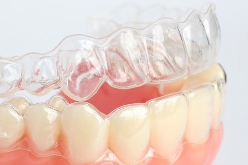 Straighten Teeth In Scarsdale With Clear Braces