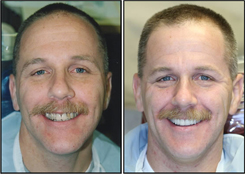 Before and After Teeth Veneers Westchester County Patient