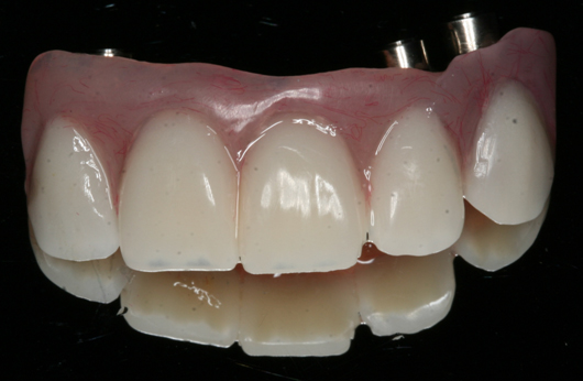 Beautiful Scarsdale Dental Implants