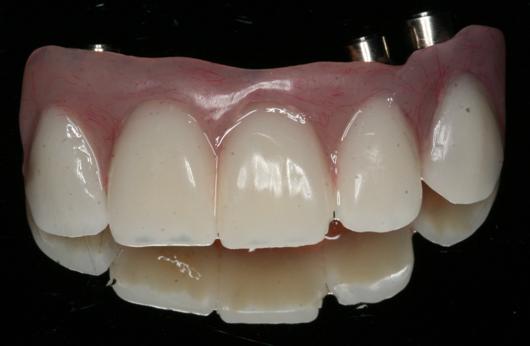Beautiful Scarsdale Dental Implants