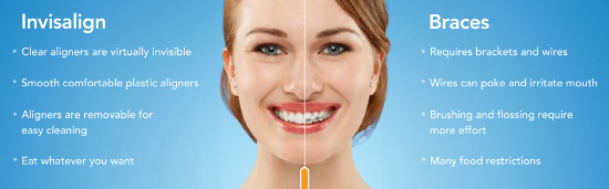 Straighten Teeth With Clear Braces in White Plains