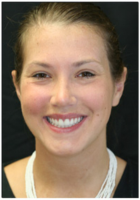 Scarsdale Teeth Veneers Patient