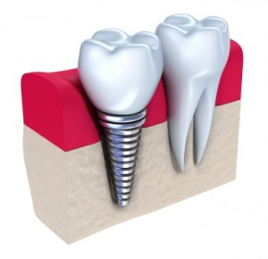Improvements In Hartsdale Implant Dentistry