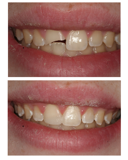 Cosmeitc bonding restoration at The Dental Design Center in White Plains