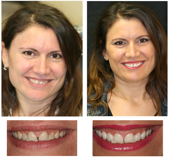 Porcelain Veneers and Crowns before and after photos