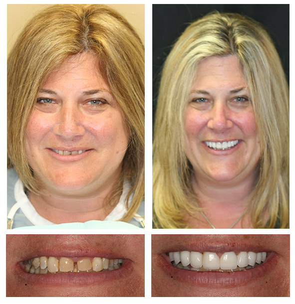 porcelain crowns and veneers before and after by Dr. Hanschuh