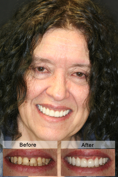 Full cosmetic and functional restoration of entire top jaw with porcelain crowns and veneers