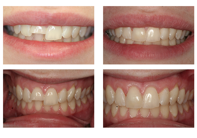 single tooth veneer before and after
