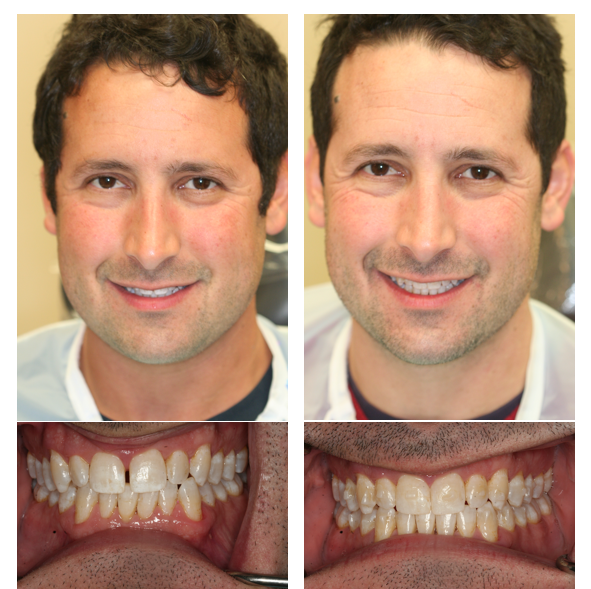 Patient presents unhappy with large spaces. Invisalign treatment closes spaces nicely.