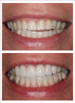 This patient's line of work makes her highly visible and she wanted to have a smile she could be proud to share.  We placed six porcelain veneers on her top teeth with beautiful results!
