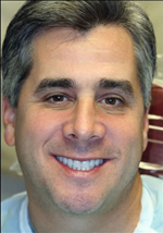 Dr. Handschuh can close gaps in teeth with porcelain veneers