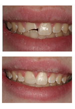 Cosmetic Bonding Restored Shattered Tooth