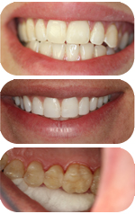 Bonding and Inlay Cases by White Plains dentist Dr. Ira Handschuh
