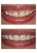 New York City dentist Dr. Ira Handschuh used cosmetic dental procedures to raise the gum line resulting in a fuller, more beautiful smile