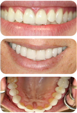 Beautiful Smiles from Dr. Handschuh, a dentist in White Plains, NY