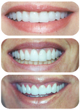 Three before and after photos from The Dental Design Center of White Plains and New York City