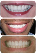 Cosmetic dental procedures from The Dental Design Center in White Plains, NY