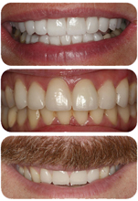 Three smiles came to life with porcelain veneers and New York City cosmetic dentist Dr. Ira Handschuh