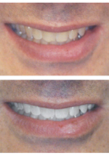 Teeth Whitening at The Dental Design Center can give a bright, white smile