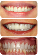 Combining teeth whitening and dental veneer treatments creates beautiful results